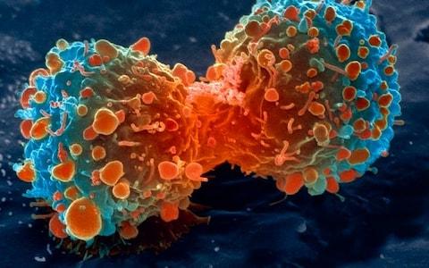lung_cancer_tumours_trans_NvBQzQNjv4BqpJliwavx4coWFCaEkEsb3kvxIt-lGGWCWqwLa_RXJU8